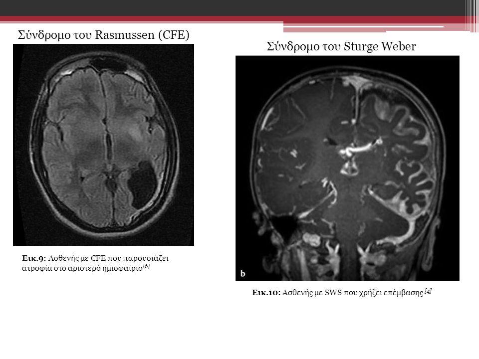 Σύνδρομο του Rasmussen (CFE) Σύνδρομο του Sturge Weber Εικ.9: Ασθενής με CFE που παρουσιάζει ατροφία στο αριστερό ημισφαίριο [6] Εικ.10: Ασθενής με SWS που χρήζει επέμβασης [4]