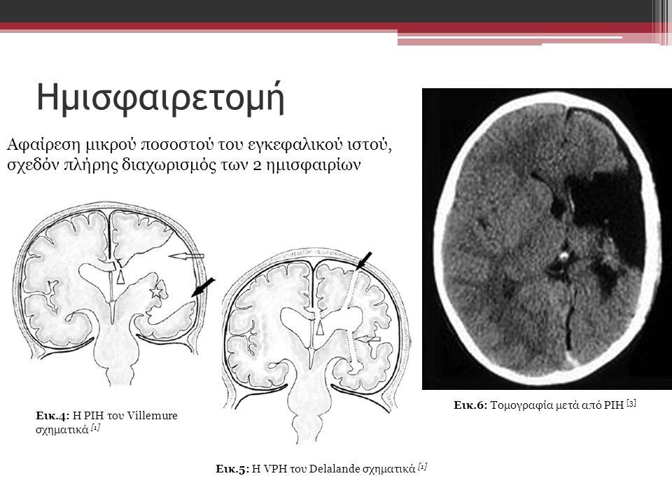 Ημισφαιρετομή Eικ.4: Η PIH του Villemure σχηματικά [1] Αφαίρεση μικρού ποσοστού του εγκεφαλικού ιστού, σχεδόν πλήρης διαχωρισμός των 2 ημισφαιρίων Eικ.5: Η VPH του Delalande σχηματικά [1] Εικ.6: Τομογραφία μετά από PIH [3]
