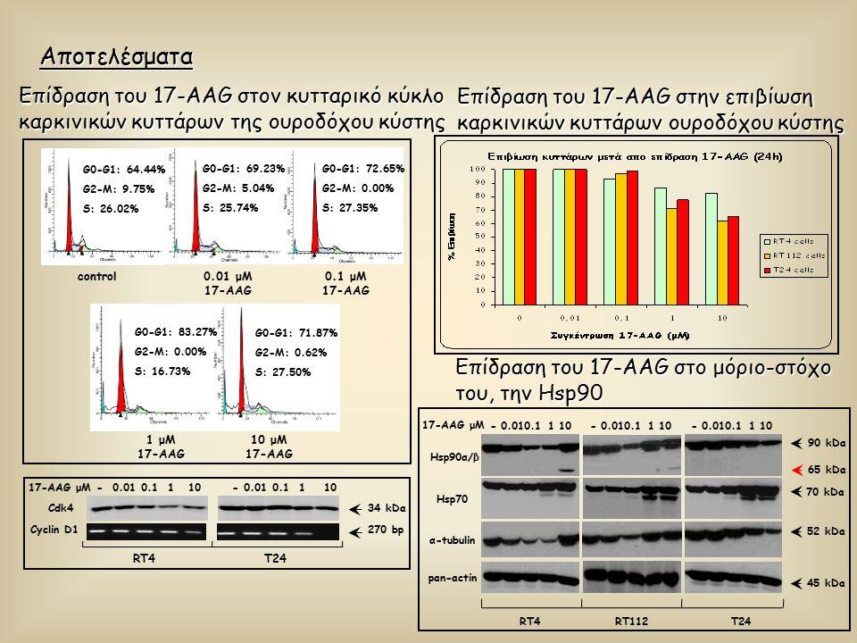 Αποτελέσματα Επίδραση του 17-AAG στον κυτταρικό κύκλο καρκινικών κυττάρων της ουροδόχου κύστης control0.01 μM 17-AAG 0.1 μM 17-AAG 1 μM 17-AAG 10 μM 17-AAG G0-G1: 64.44% G2-M: 9.75% S: 26.02% G0-G1: 69.23% G2-M: 5.04% S: 25.74% G0-G1: 72.65% G2-M: 0.00% S: 27.35% G0-G1: 83.27% G2-M: 0.00% S: 16.73% G0-G1: 71.87% G2-M: 0.62% S: 27.50% Cdk434 kDa - 0.01 0.1 1 1017-AAG μM - 0.01 0.1 1 10 Cyclin D1 RT4 T24 270 bp Επίδραση του 17-AAG στην επιβίωση καρκινικών κυττάρων ουροδόχου κύστης Επίδραση του 17-AAG στο μόριο-στόχο του, την Hsp90 17-AAG μM α-tubulin pan-actin Hsp70 70 kDa 45 kDa 52 kDa Hsp90α/β 90 kDa RT4RT112T24 - 0.010.1 1 10 65 kDa - 0.010.1 1 10