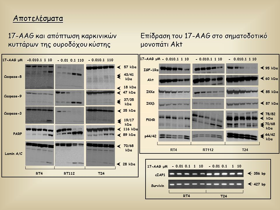 Αποτελέσματα Επίδραση του 17-AAG στο σηματοδοτικό μονοπάτι Akt 17-AAG μM IGF-1Ra Akt FKHR IKKα IKKβ p44/42 85 kDa 87 kDa 44/42 kDa 95 kDa 60 kDa 78/82 kDa 70/68 kDa - 0.010.1 1 10 RT4RT112T24 cIAP1 Survivin RT4 T24 17-AAG μM - 0.01 0.1 1 10 427 bp 356 bp 17-AAG και απόπτωση καρκινικών κυττάρων της ουροδόχου κύστης 18 kDa 57 kDa 35 kDa -0.010.1 1 10 17-AAG μM Caspase-8 Caspase-9 Caspase-3 PARP Lamin A/C 47 kDa 37/35 kDa 116 kDa 89 kDa 70/68 kDa 28 kDa 43/41 kDa 19/17 kDa RT4RT112T24 - 0.01 0.1 110