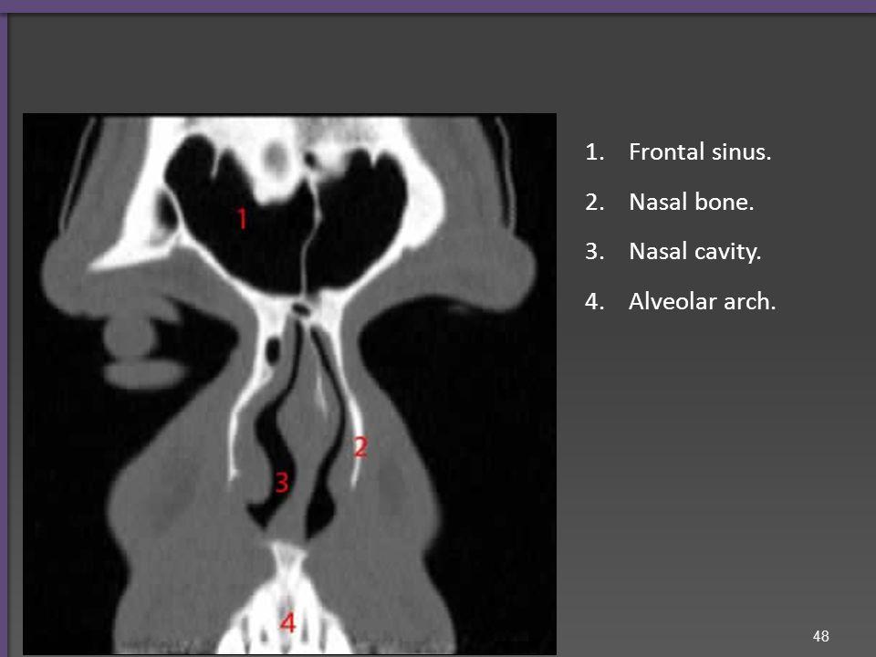 1.Frontal sinus. 2.Nasal bone. 3.Nasal cavity. 4.Alveolar arch. 48