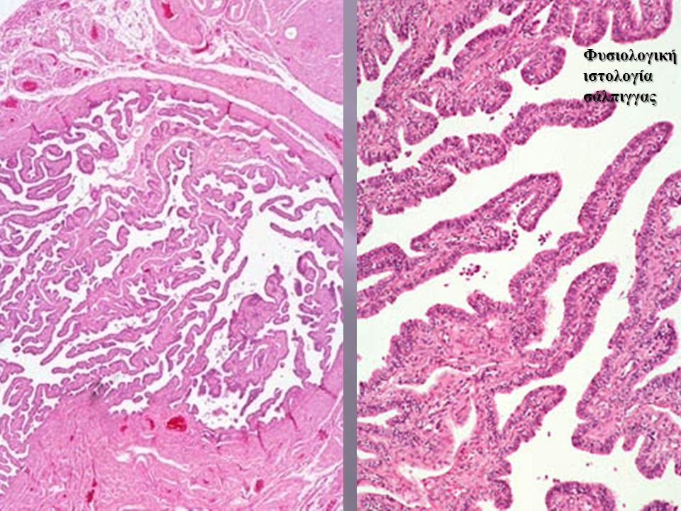 Αρχική βιοψία της ασθενούς - Περιπυλαία ηπατίτιδα