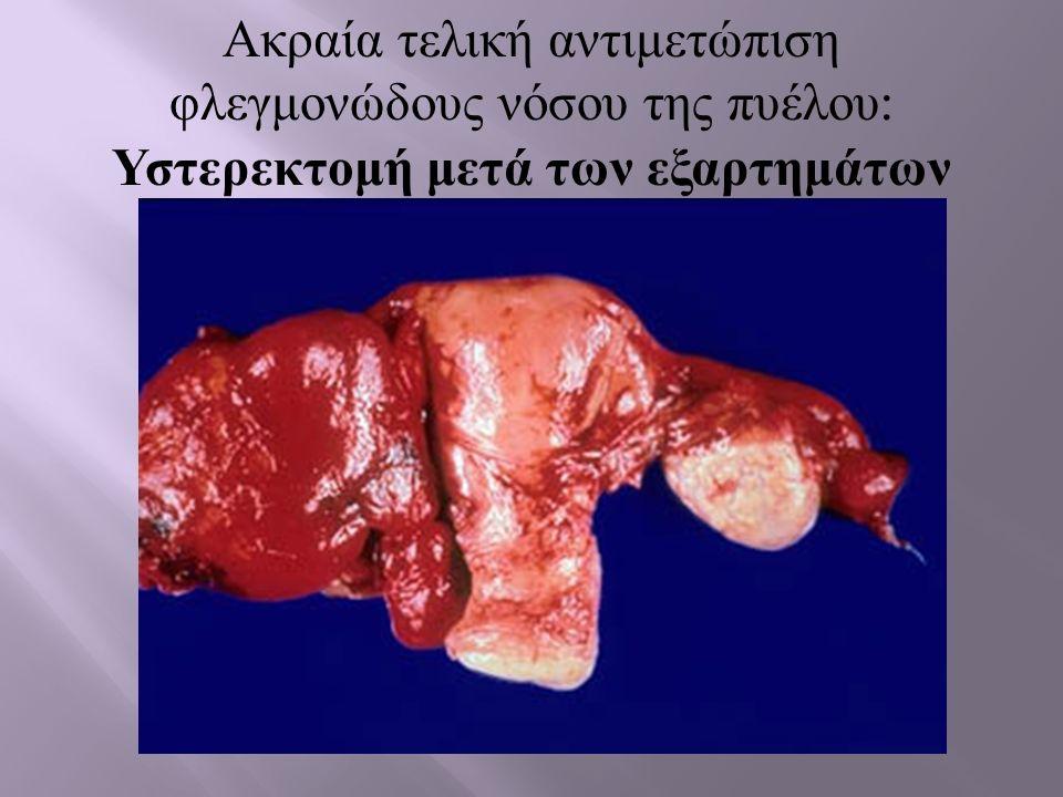 Αρχική βιοψία της ασθενούς - Λοβιακή δραστηριότητα της ηπατίτιδας
