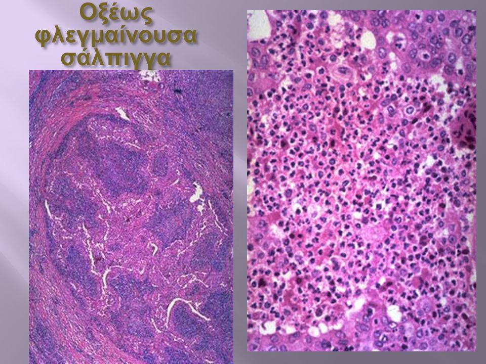 Επιθηλιακά κύτταρα εν μέσω κυττάρων φλεγμονώδους εξιδρώματος