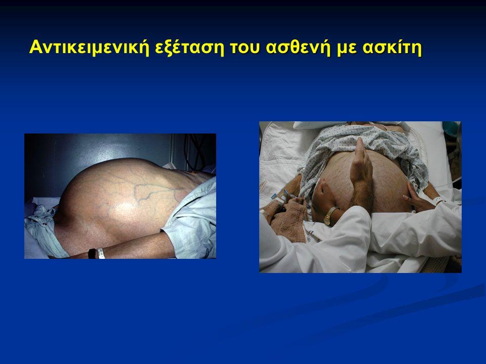 του ασθενή με ασκίτη Αντικειμενική εξέταση του ασθενή με ασκίτη