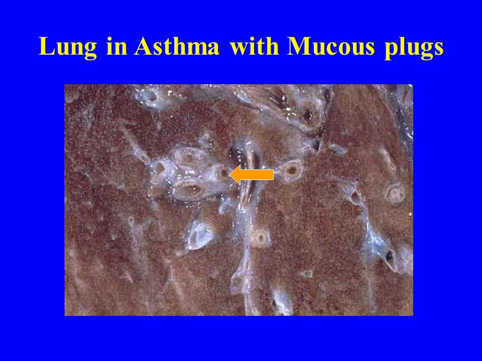 Lung in Asthma with Mucous plugs