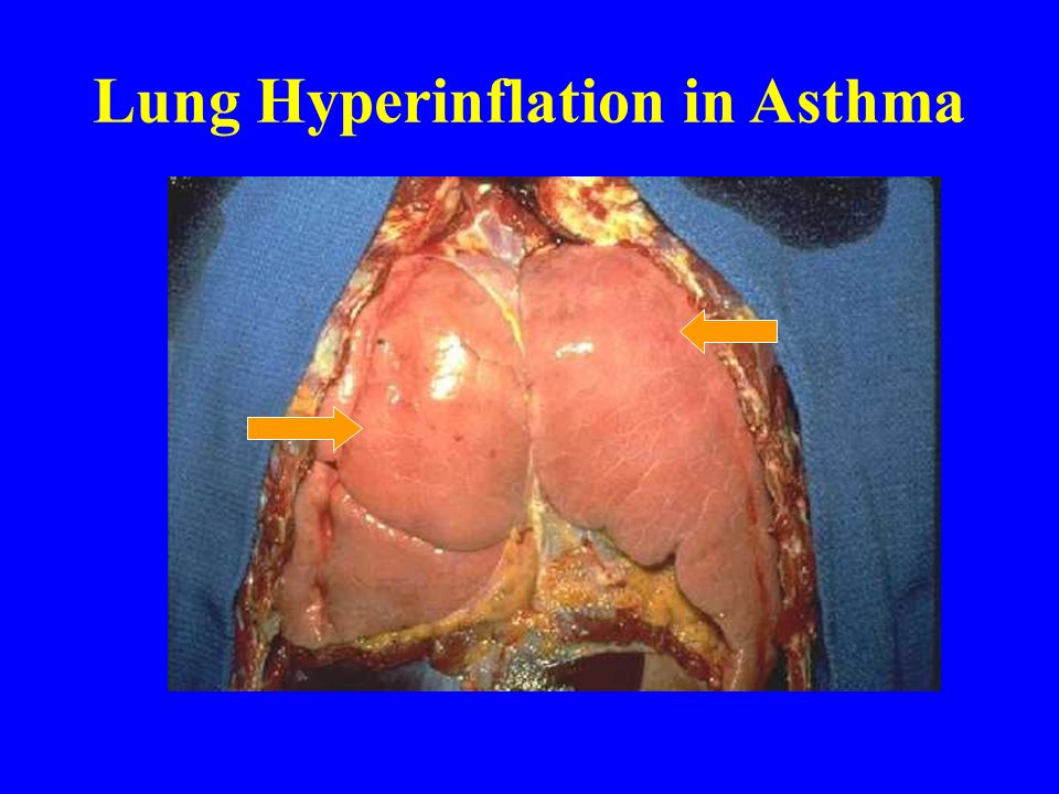 Lung Hyperinflation in Asthma