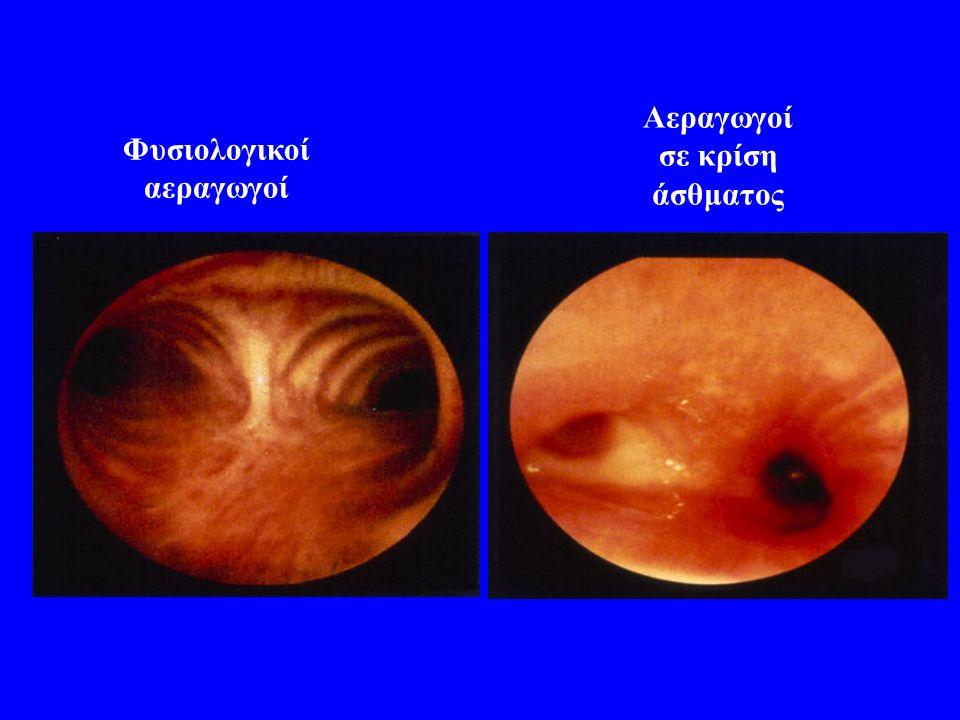 Αεραγωγοί σε κρίση άσθματος Φυσιολογικοί αεραγωγοί