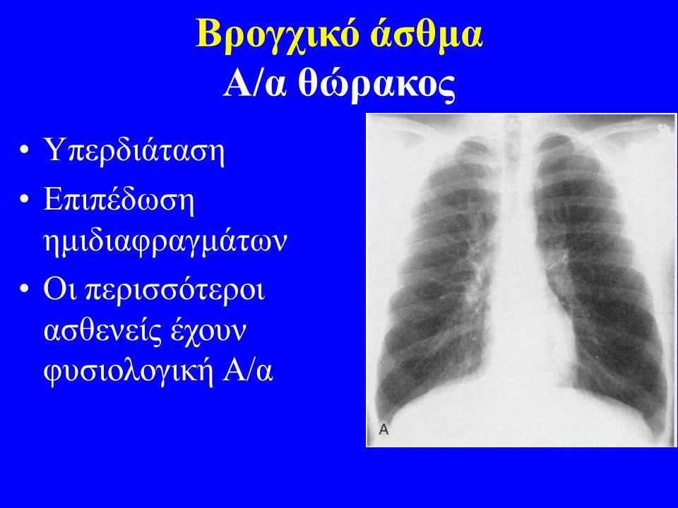 Βρογχικό άσθμα Α/α θώρακος Υπερδιάταση Επιπέδωση ημιδιαφραγμάτων Οι περισσότεροι ασθενείς έχουν φυσιολογική Α/α