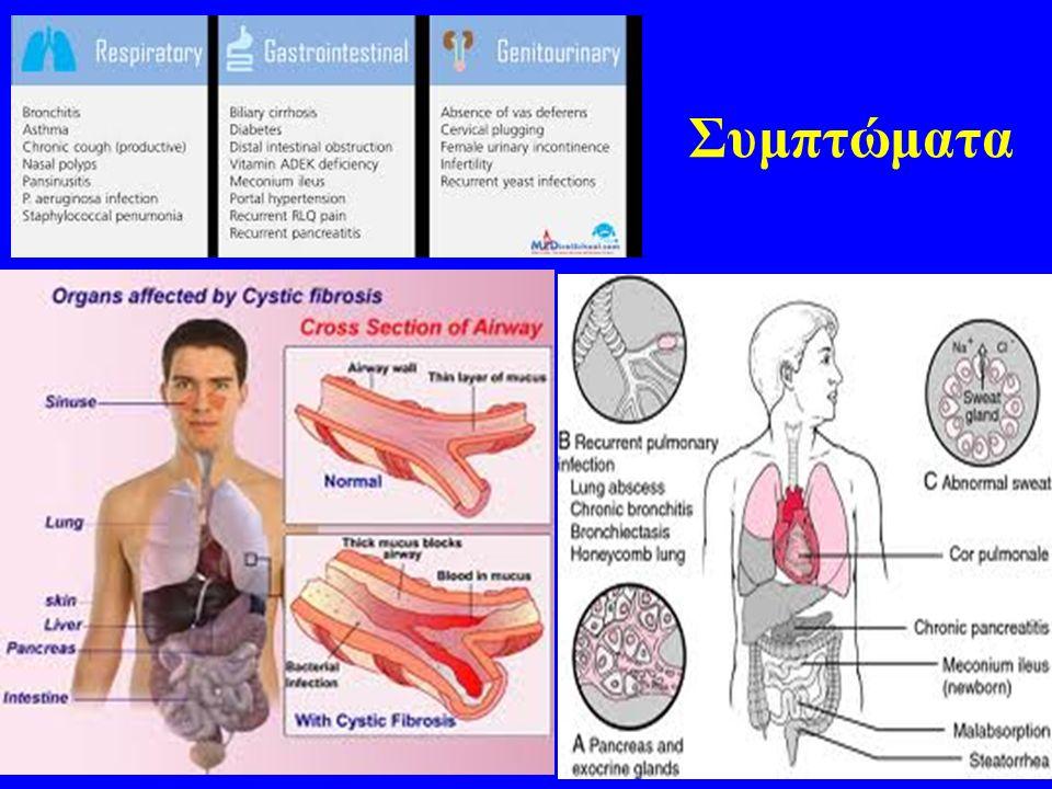 Συμπτώματα