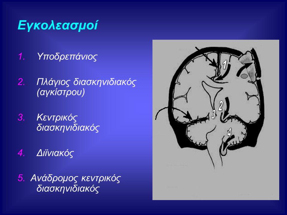 Εγκολεασμοί 1.Υποδρεπάνιος 2.Πλάγιος διασκηνιδιακός (αγκίστρου) 3.Κεντρικός διασκηνιδιακός 4.Διϊνιακός 5. Ανάδρομος κεντρικός διασκηνιδιακός