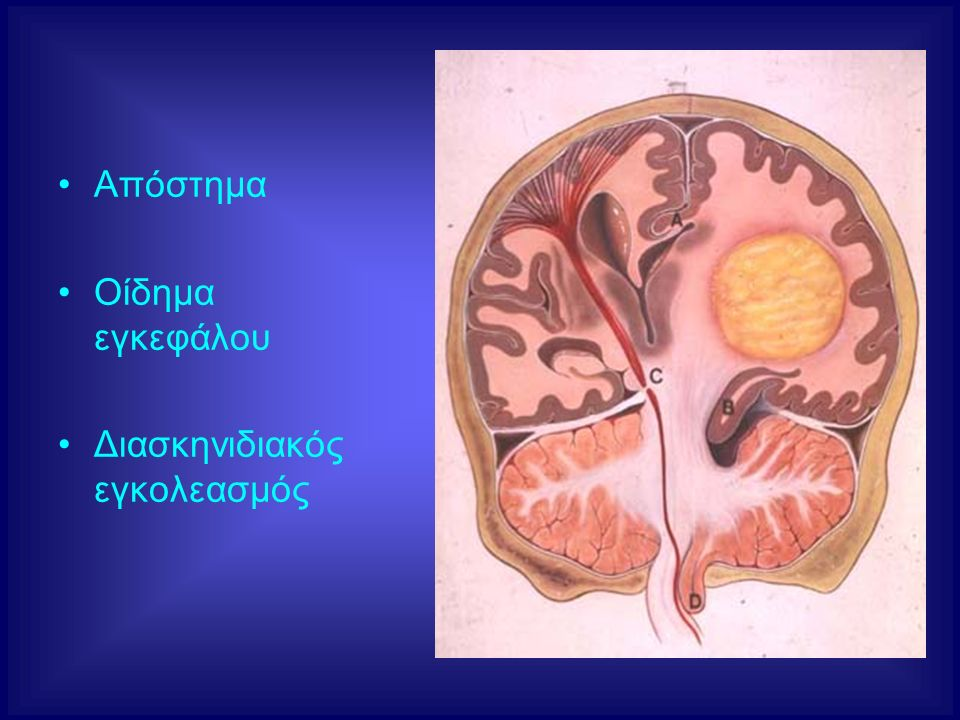 Απόστημα Οίδημα εγκεφάλου Διασκηνιδιακός εγκολεασμός