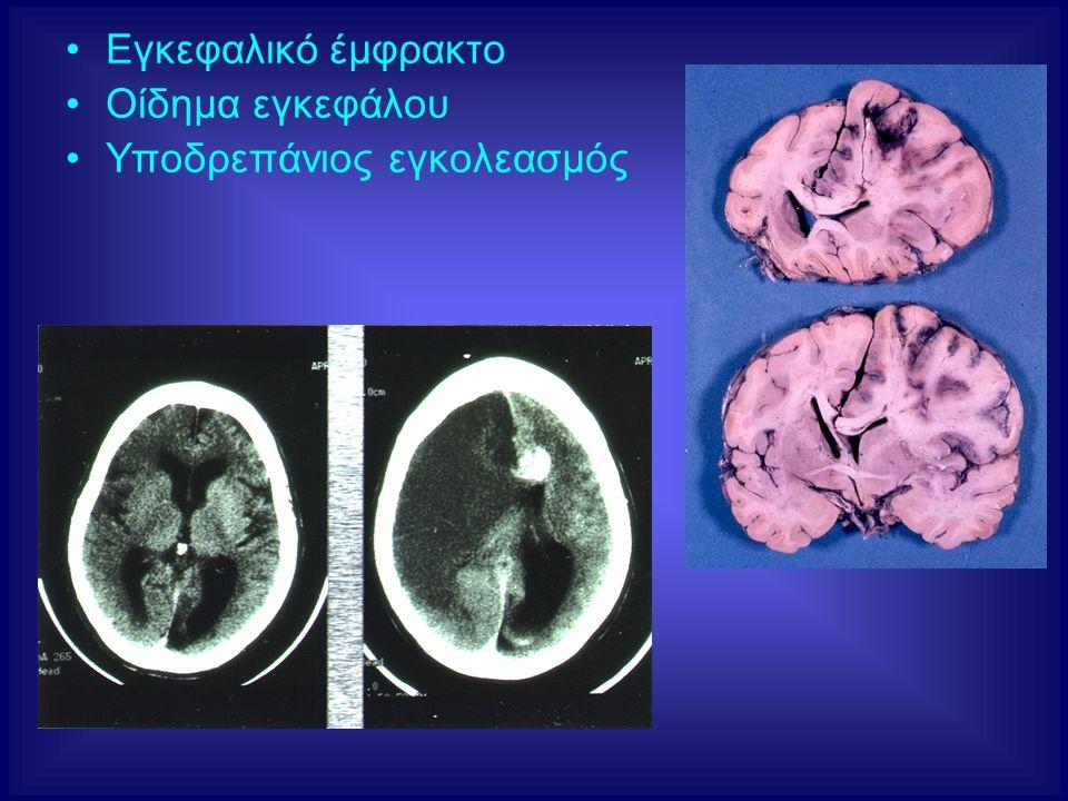 Εγκεφαλικό έμφρακτο Οίδημα εγκεφάλου Υποδρεπάνιος εγκολεασμός