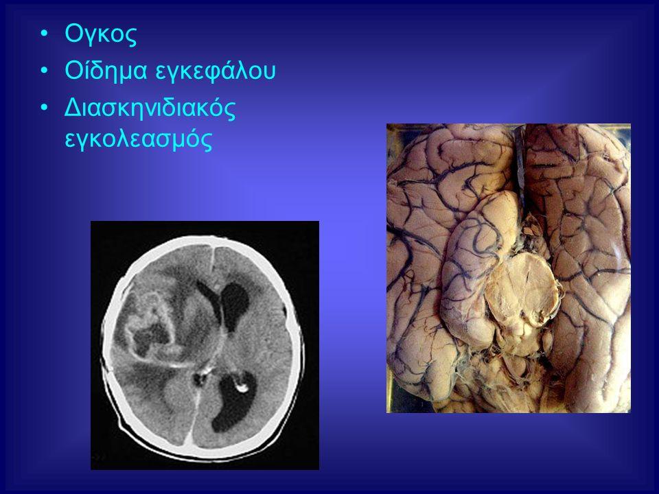 Ογκος Οίδημα εγκεφάλου Διασκηνιδιακός εγκολεασμός