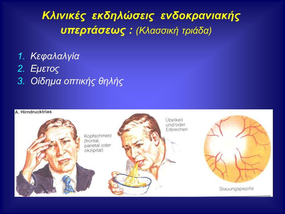 Κλινικές εκδηλώσεις ενδοκρανιακής υπερτάσεως : (Κλασσική τριάδα) 1. Κεφαλαλγία 2. Εμετος 3. Οίδημα οπτικής θηλής
