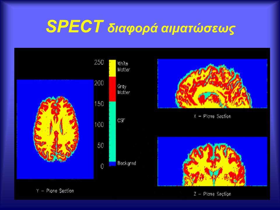Αγγειοδιαστολή Εγκεφαλική υπεραιμία Eγκεφαλικό οίδημα Η αύξηση του όγκου του εγκεφάλου λόγω αυξήσεως του εμπεριεχομένου ύδατος.