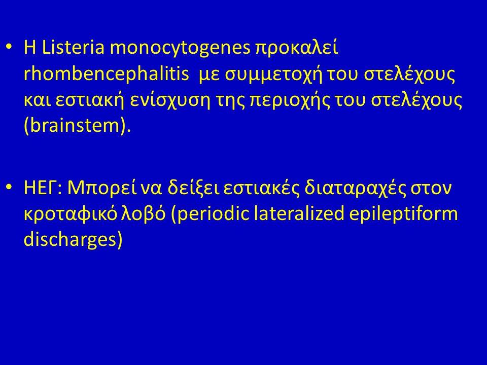 Η Listeria monocytogenes προκαλεί rhombencephalitis με συμμετοχή του στελέχους και εστιακή ενίσχυση της περιοχής του στελέχους (brainstem).