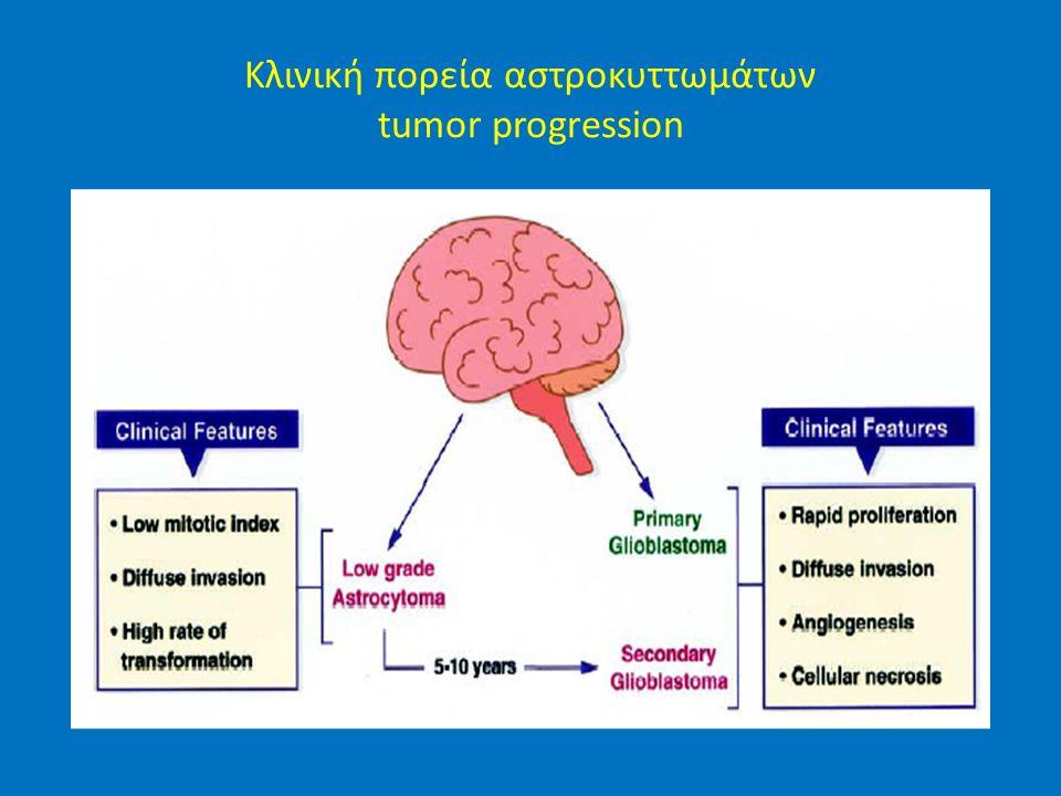 Κλινική πορεία αστροκυττωμάτων tumor progression