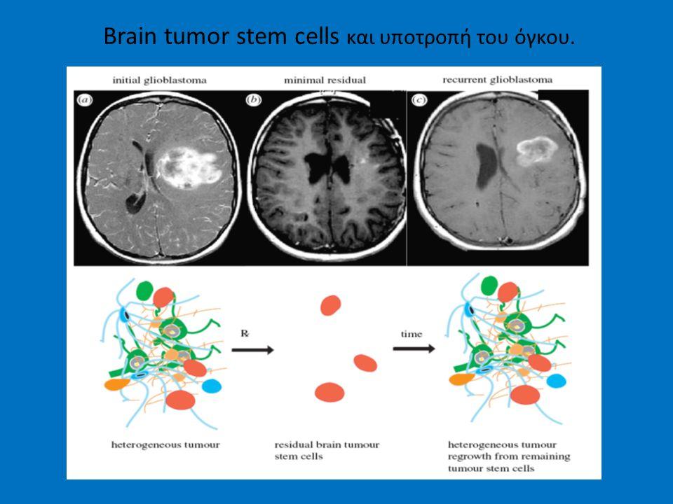 Brain tumor stem cells και υποτροπή του όγκου.