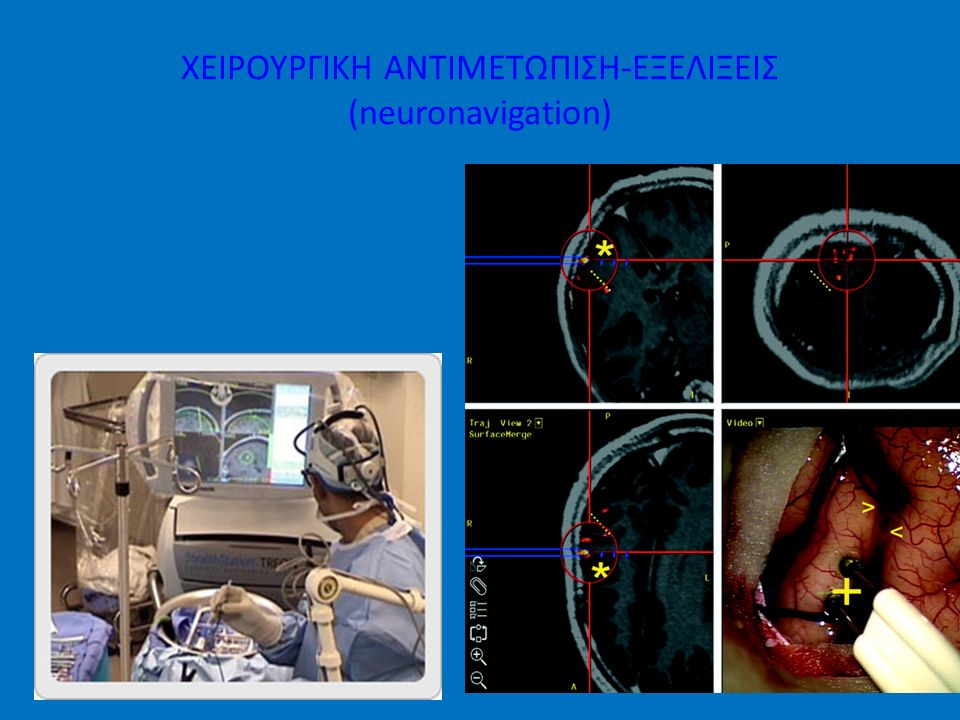 ΧΕΙΡΟΥΡΓΙΚΗ ΑΝΤΙΜΕΤΩΠΙΣΗ-ΕΞΕΛΙΞΕΙΣ (neuronavigation)