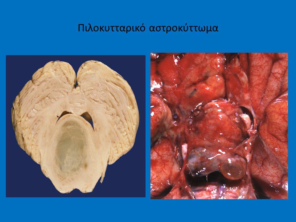 Πιλοκυτταρικό αστροκύττωμα