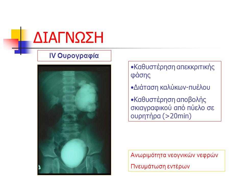 ΔΙΑΓΝΩΣΗ Ανωριμότητα νεογνικών νεφρών Πνευμάτωση εντέρων IV Ουρογραφία Καθυστέρηση απεκκριτικής φάσης Διάταση καλύκων-πυέλου Καθυστέρηση αποβολής σκιαγραφικού από πύελο σε ουρητήρα (>20min)