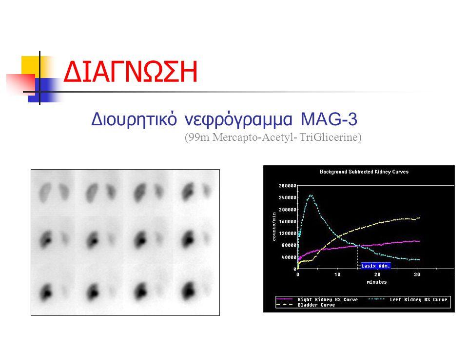 ΔΙΑΓΝΩΣΗ Διουρητικό νεφρόγραμμα MAG-3 (99m Mercapto-Acetyl- TriGlicerine)