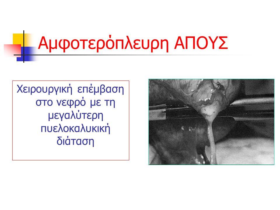 Αμφοτερόπλευρη ΑΠΟΥΣ Χειρουργική επέμβαση στο νεφρό με τη μεγαλύτερη πυελοκαλυκική διάταση