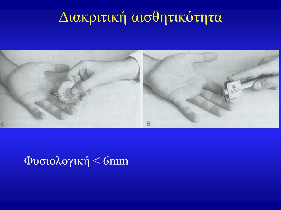 Διακριτική αισθητικότητα Φυσιολογική < 6mm