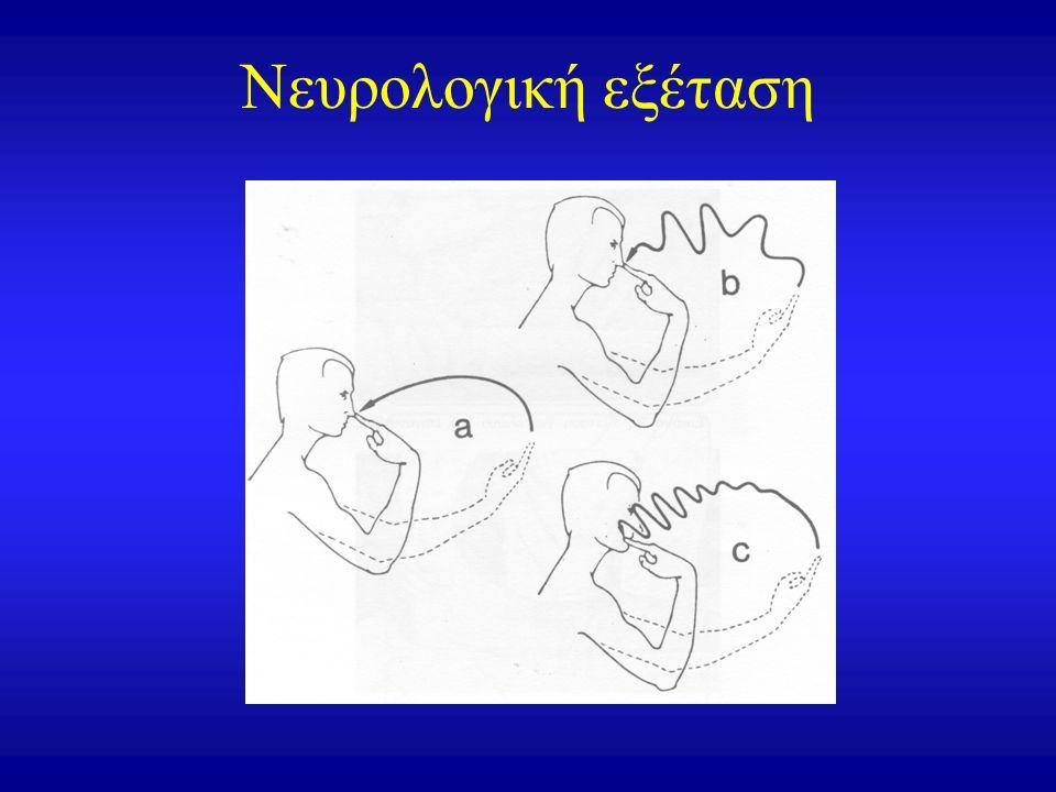 Νευρολογική εξέταση