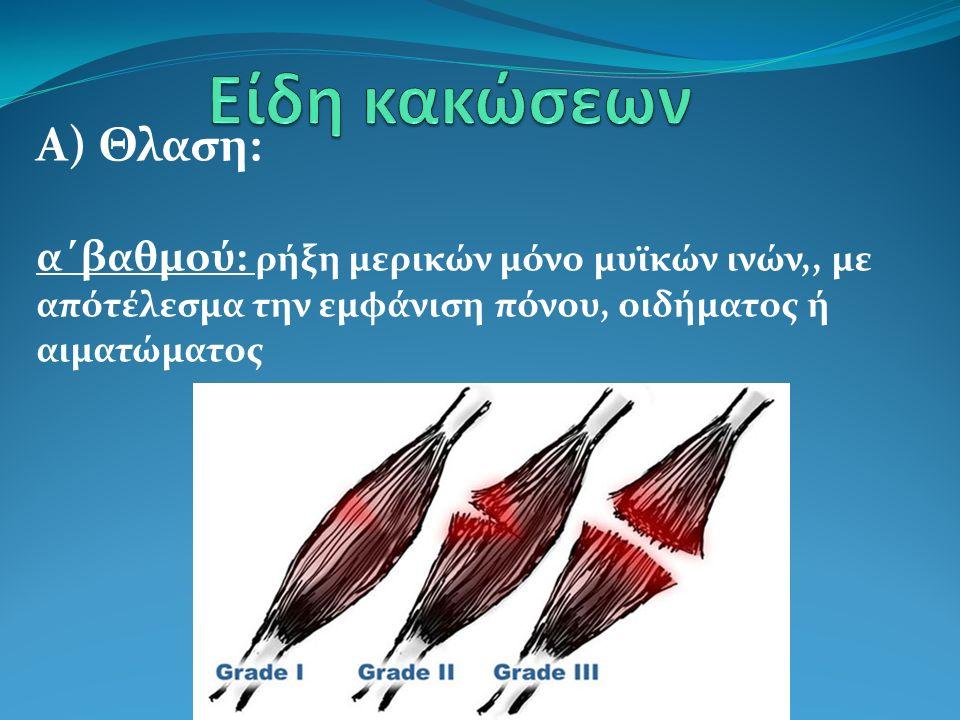 Α) Θλαση: α΄βαθμού: ρήξη μερικών μόνο μυϊκών ινών,, με απότέλεσμα την εμφάνιση πόνου, οιδήματος ή αιματώματος