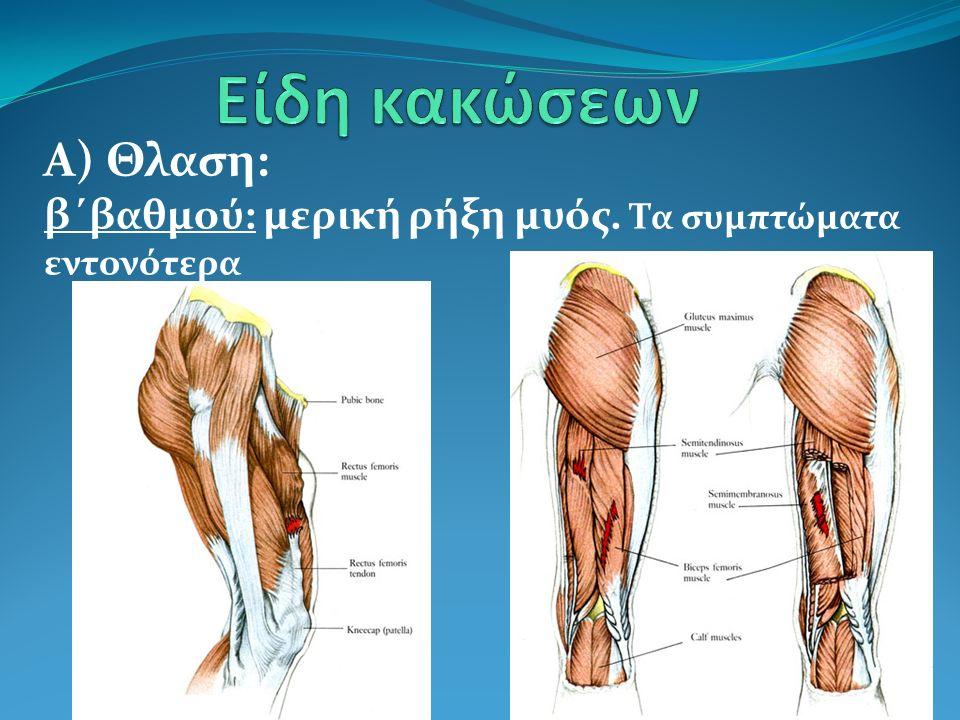 Α) Θλαση: β΄βαθμού: μερική ρήξη μυός. Τα συμπτώματα εντονότερα