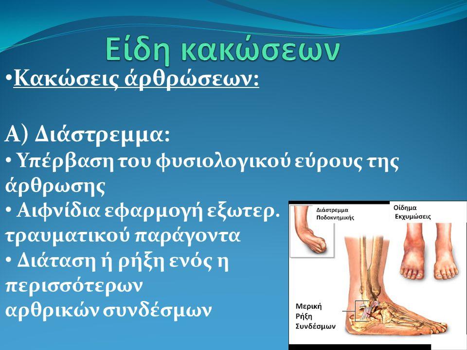 Κακώσεις άρθρώσεων: Α) Διάστρεμμα: Υπέρβαση του φυσιολογικού εύρους της άρθρωσης Αιφνίδια εφαρμογή εξωτερ. τραυματικού παράγοντα Διάταση ή ρήξη ενός η