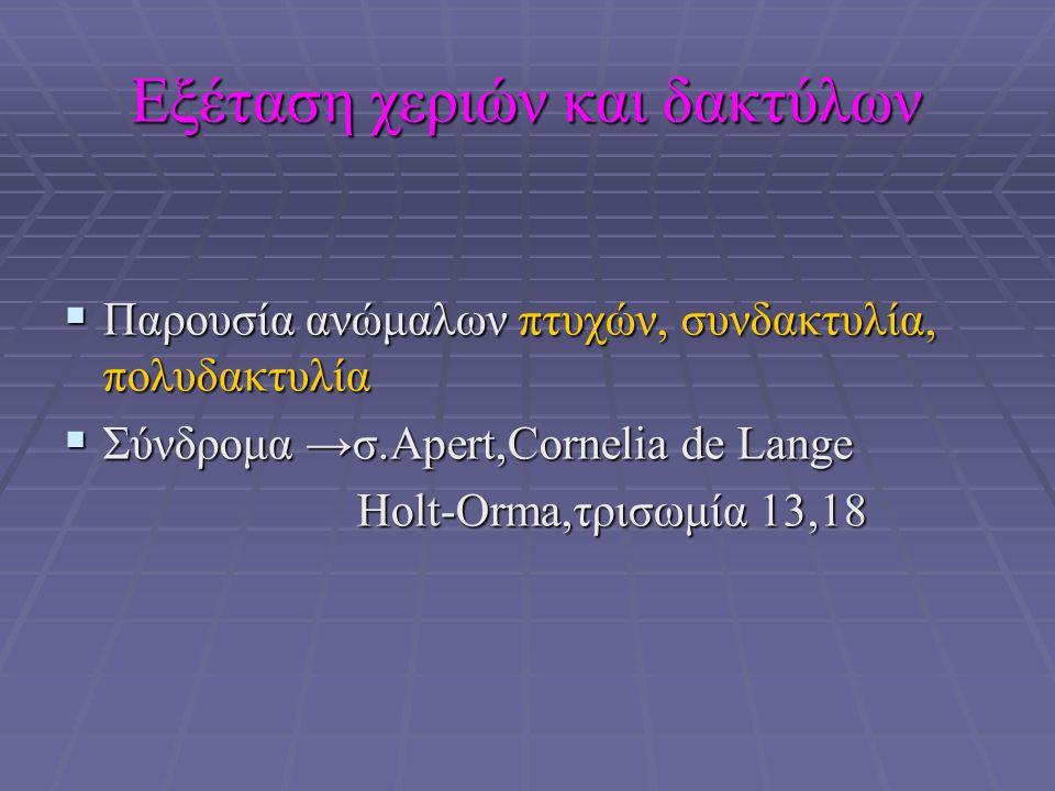 Εξέταση χεριών και δακτύλων  Παρουσία ανώμαλων πτυχών, συνδακτυλία, πολυδακτυλία  Σύνδρομα →σ.Αpert,Cornelia de Lange Holt-Orma,τρισωμία 13,18 Holt-Orma,τρισωμία 13,18