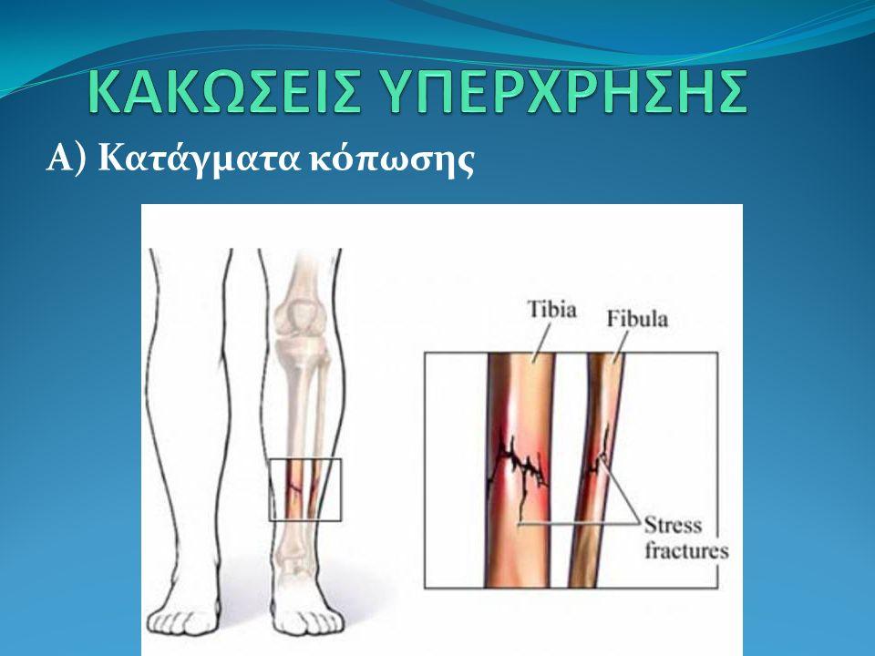 Πόνοςσε όλο το μήκος του οστού και εντοπισμένος στην περιοχή της βλάβης Δεν φαίνονται σε απλό ακτινογραφικό έλεγχο, αλλά σε αξονική τομογραφία ή σπινθιρογράφημα οστών Ανάπαυση ή αν εμφανιστεί κάταγμα - ακινητοποίηση