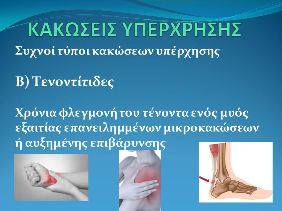 Β) Τενοντίτιδες Οξύ στάδιο – πόνος στην περιοχή του τένοντα κατά την προθερμανση και μετά την άσκηση Χρόνια μορφή – συνεχής πόνος