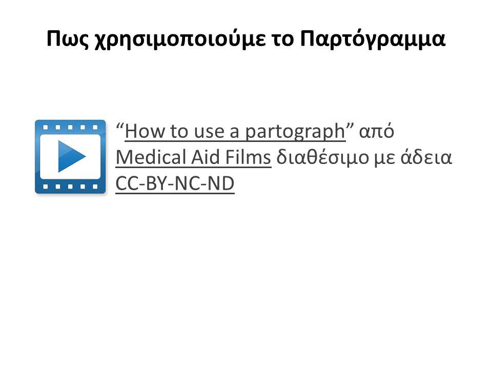 Πως χρησιμοποιούμε το Παρτόγραμμα How to use a partograph από Medical Aid Films διαθέσιμο με άδεια CC-BY-NC-NDHow to use a partograph Medical Aid Films CC-BY-NC-ND