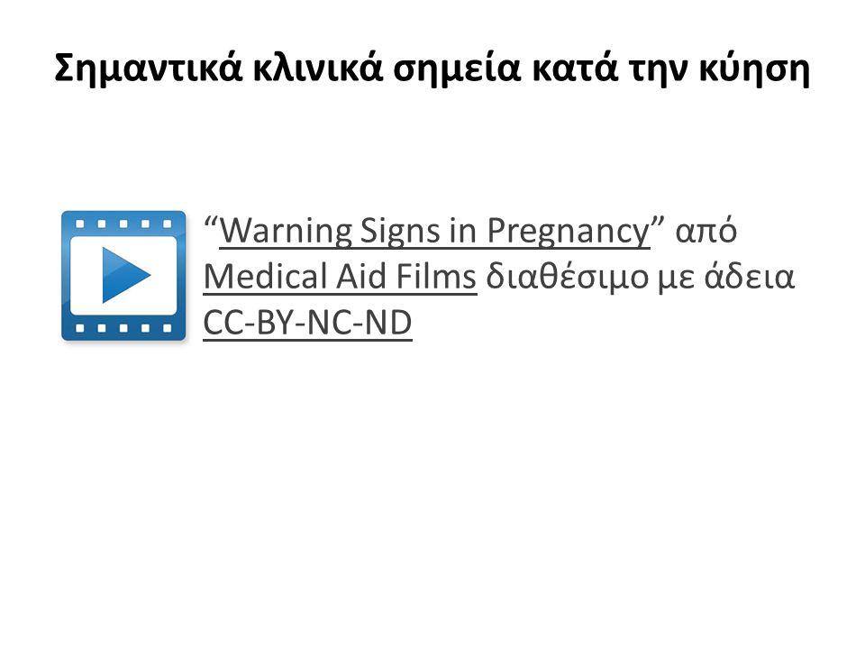"""Σημαντικά κλινικά σημεία κατά την κύηση """"Warning Signs in Pregnancy"""" από Medical Aid Films διαθέσιμο με άδεια CC-BY-NC-NDWarning Signs in Pregnancy Me"""