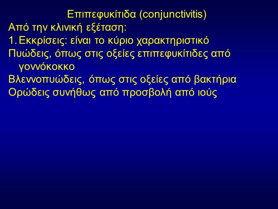 Επιπεφυκίτιδα (conjunctivitis) Από την κλινική εξέταση: 2.