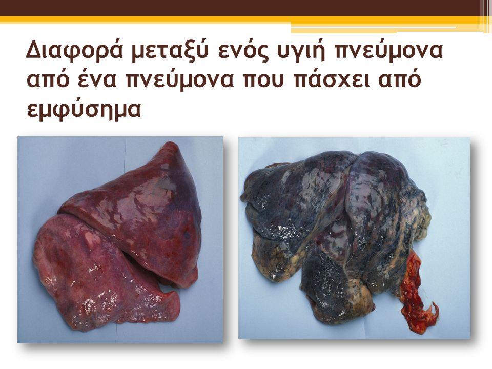 Διαφορά μεταξύ ενός υγιή πνεύμονα από ένα πνεύμονα που πάσχει από εμφύσημα