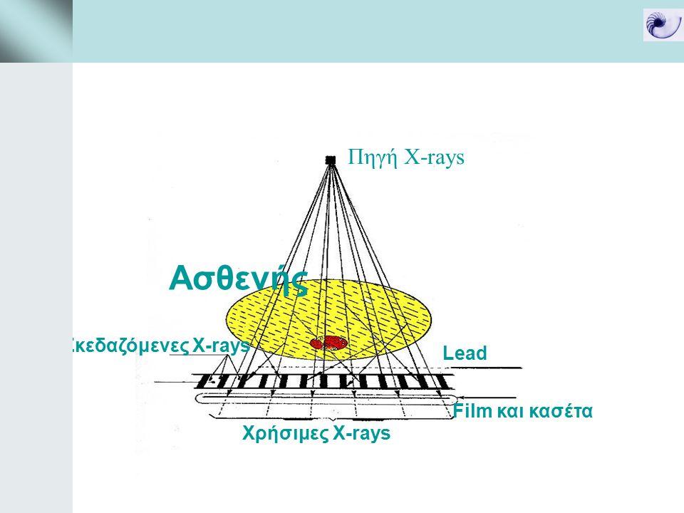 Πηγή X-rays Lead Σκεδαζόμενες X-rays Χρήσιμες Χ-rays Film και κασέτα Ασθενής