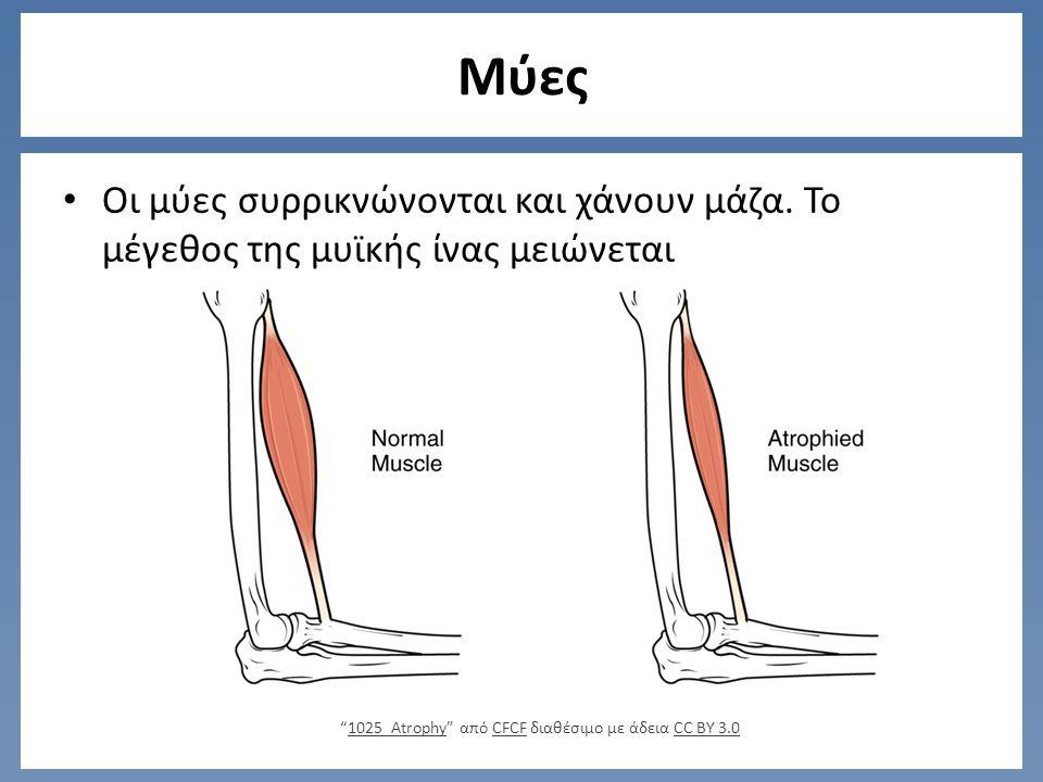 Μύες Οι μύες συρρικνώνονται και χάνουν μάζα.