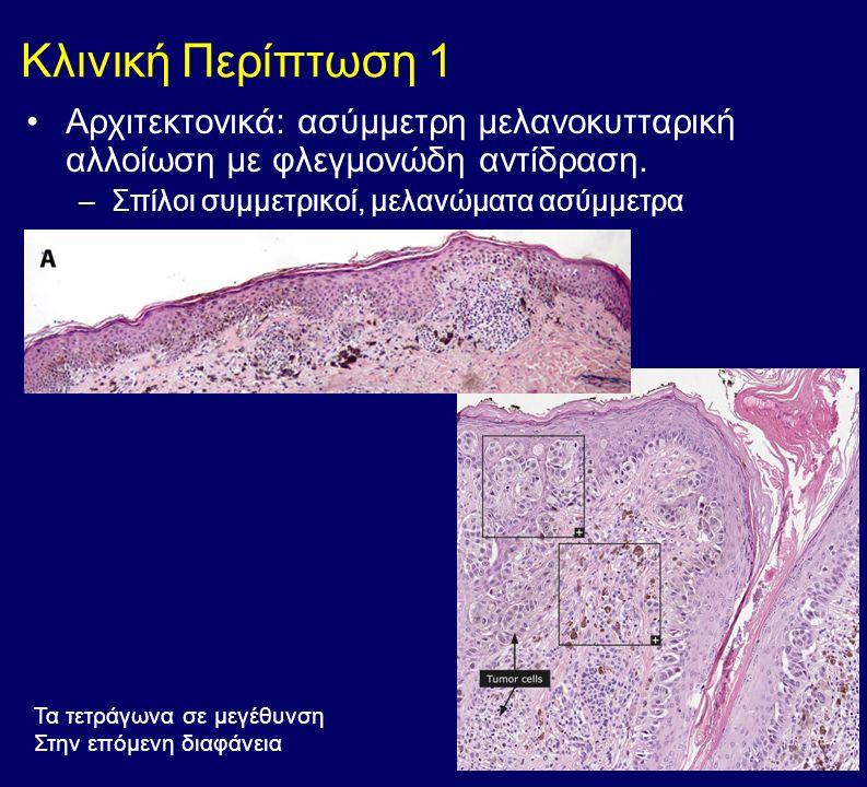 Κυτταρολογικά: άτυπα μελανοκύτταρα, μεγάλα με έντονα πυρήνια, παζετοειδή διασπορά στις ανώτερες στιβάδες της επιδερμίδας (χαρακτηριστικά μελανωμάτων) Στο χόριο παρατηρείται διήθηση από νεοπλασματικά κύτταρα (διηθητικό μελάνωμα) καθώς και μελανίνη μέσα σε μακροφάγα (μελανοφάγα)
