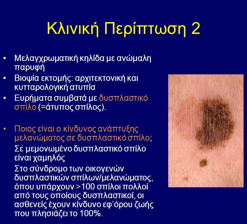 Κλινική Περίπτωση 2 Μελαγχρωματική κηλίδα με ανώμαλη παρυφή Βιοψία εκτομής: αρχιτεκτονική και κυτταρολογική ατυπία Ευρήματα συμβατά με δυσπλαστικό σπίλο (=άτυπος σπίλος).