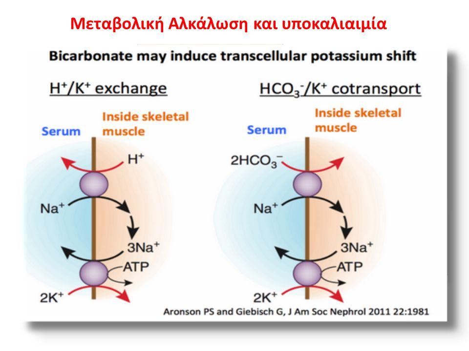 Μεταβολική Αλκάλωση και υποκαλιαιμία ↓K+↓K+ ↓K+↓K+ ↓K+↓K+ ↑ παροχή Na + στον άπω νεφρώνα →↑ απώλειες K + ↑ απώλειες Cl - → υποχλωραιμια → αδυναμία αποβολής HCO 3 -