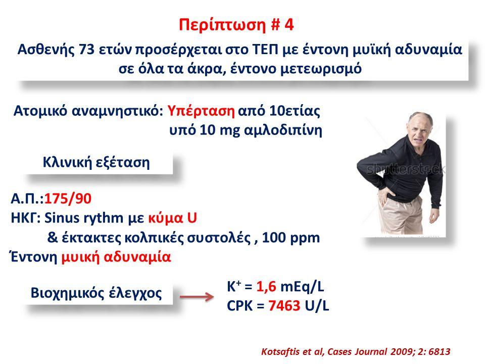 Περίπτωση # 4 Ασθενής 73 ετών προσέρχεται στο ΤΕΠ με έντονη μυϊκή αδυναμία σε όλα τα άκρα, έντονο μετεωρισμό Ατομικό αναμνηστικό: Υπέρταση από 10ετίας υπό 10 mg αμλοδιπίνη Kotsaftis et al, Cases Journal 2009; 2: 6813 Κλινική εξέταση Α.Π.:175/90 ΗΚΓ: Sinus rythm με κύμα U & έκτακτες κολπικές συστολές, 100 ppm Έντονη μυική αδυναμία Βιοχημικός έλεγχος K + = 1,6 mEq/L CPK = 7463 U/L