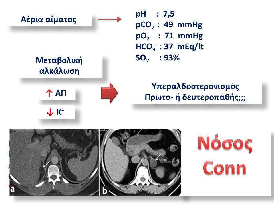 Αέρια αίματος pH : 7,5 pCO 2 : 49 mmHg pO 2 : 71 mmHg HCO 3 - : 37 mEq/lt SO 2 : 93% Μεταβολική αλκάλωση ↑ ΑΠ ↓ K + Υπεραλδοστερονισμός Πρωτο- ή δευτεροπαθής;;; Υπεραλδοστερονισμός Πρωτο- ή δευτεροπαθής;;; Ρlasma renin activity : ↓ 0.7 ng/ml/h (0.2-2.8 ng/ml/h) Plasma aldosterone concentration: ↑498 pg/ml (10-160 pg/ml) ACTH: 34 pg/ml (0-40 pg/mlml) Cortisol: 348 nmol/l (171-536 nmol/l) Υποκαλιαιμία & Υπερκαλιουρία : 64 meq/24h (23-127 meq/24h)