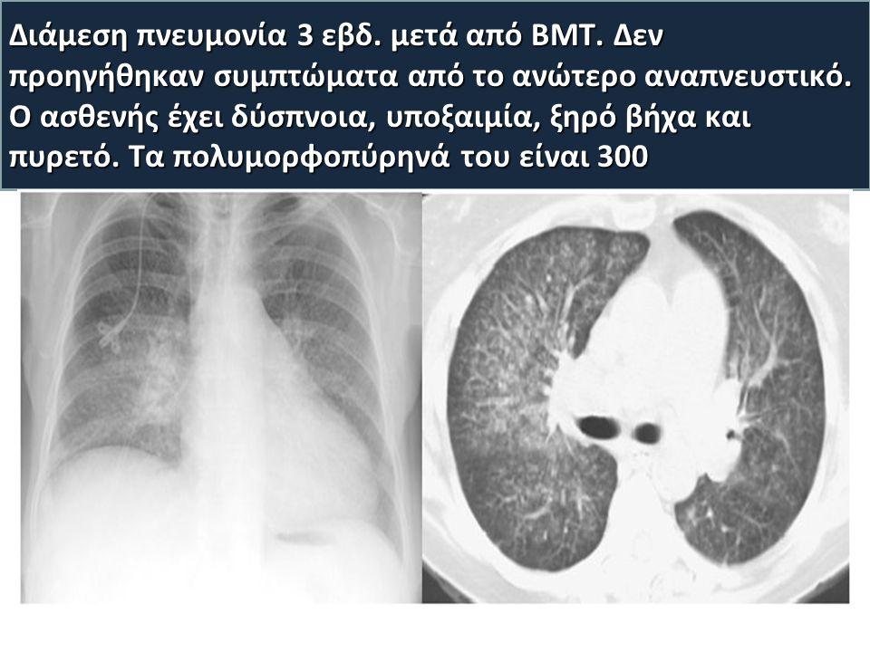 Διάμεση πνευμονία 3 εβδ. μετά από BMT. Δεν προηγήθηκαν συμπτώματα από το ανώτερο αναπνευστικό.