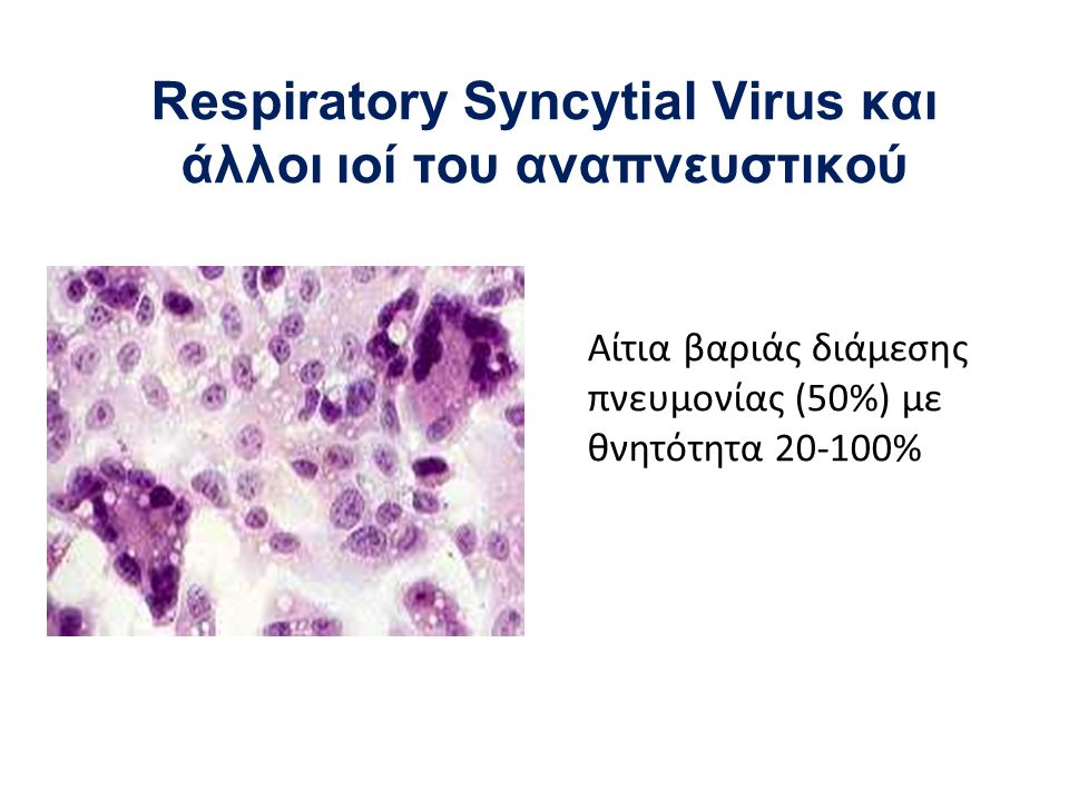 Respiratory Syncytial Virus και άλλοι ιοί του αναπνευστικού Αίτια βαριάς διάμεσης πνευμονίας (50%) με θνητότητα 20-100%