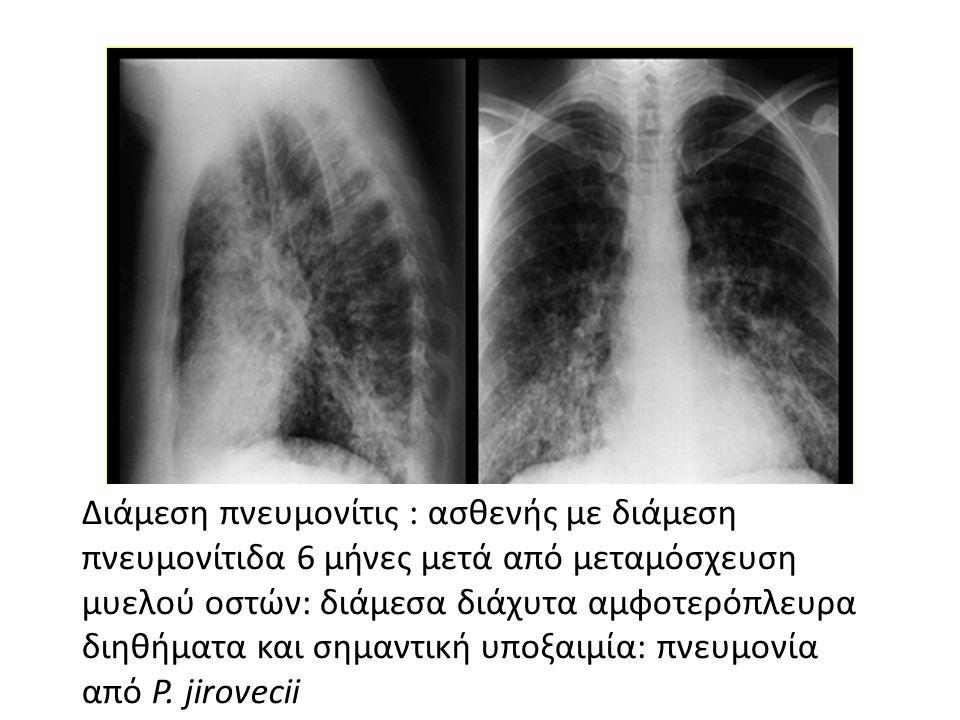 Διάμεση πνευμονίτις : ασθενής με διάμεση πνευμονίτιδα 6 μήνες μετά από μεταμόσχευση μυελού οστών: διάμεσα διάχυτα αμφοτερόπλευρα διηθήματα και σημαντική υποξαιμία: πνευμονία από P.